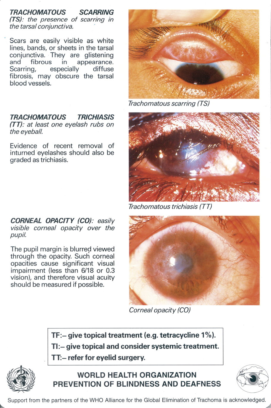Appendix 1 is the World Health Organisation Trachoma Grading Card with 6 pictorial images showing: normal tarsal conjunctiva; Trachomatous inflammation – follicular (TF); Trachomatous inflammation – follicular and intense (TF + TI); Trachomatous scarring (TS); Trachomatous trichiasis (TT); Corneal opacity (CO).  Picture 1: World Health Organisation Trachoma Grading Card with 3 pictorial images showing: Each eye must be examined and assessed separately Use binocular loupes (x2.5) and adequate lighting (either daylight or a torch) Signs must be clearly seen in order to be considered present. image 1. The eyelids and cornea are observed first for inturned eyelashes and any corneal opacity. The upper eyelid is then turned over (everted) to examine the conjunctiva over the stiffer part of the upper lid (tarsal conjunctiva). The normal conjunctiva is pink, smooth, thin and transparent. Over the whole area of the tarsal conjunctiva there are normally large deep-lying blood vessels that run vertically image 2. Trachomatous Inflammation- Follicular (TF): The presence of five or more follicles in the upper tarsal conjunctiva. Follicles are round swellings that are paler than the surrounding conjunctiva, appearing white, grey or yellow. Follicles must be at least 0.5mm in diameter, i.e., at least as large at the dots shown, to be considered. images 3. Trachomatous Inflammation-Intense (TI): Pronounced inflammatory thickening of the tarsal conjunctiva that obscures more than half of the normal deep tarsal vessels. The tarsal conjunctiva appears red, rough and thickened. There are usually numerous follicles, which may be partially or totally covered by the thickened conjunctiva.    Picture 2: World Health Organisation Trachoma Grading Card with 3 pictorial images showing: Image 4. Trachomatous scarring (TS); the presence of scaring in the tarsal conjunctiva Scars are easily visible as white lines, bands or sheets in the tarsal conjunctiva. They are glistening and fibrous in appearance.  Scarring, especially disfuse fibrosis, may obscure the tarsal blood vessels. Image 5. Trachomatous trichiasis (TT); at least one eyelash rubs on the eyeball.  Evidence of recent removal of inturned eyelashes should also be graded as trichiasis. Image 6. Corneal opacity (CO): easily visible corneal opacity over the pupil.  The pupil margin is blurred viewed through the opacity.  Such corneal opacities cause significant visual impairment (less than 6/18 or 0.3 vision) and therefore visual acuity should be measured if possible.